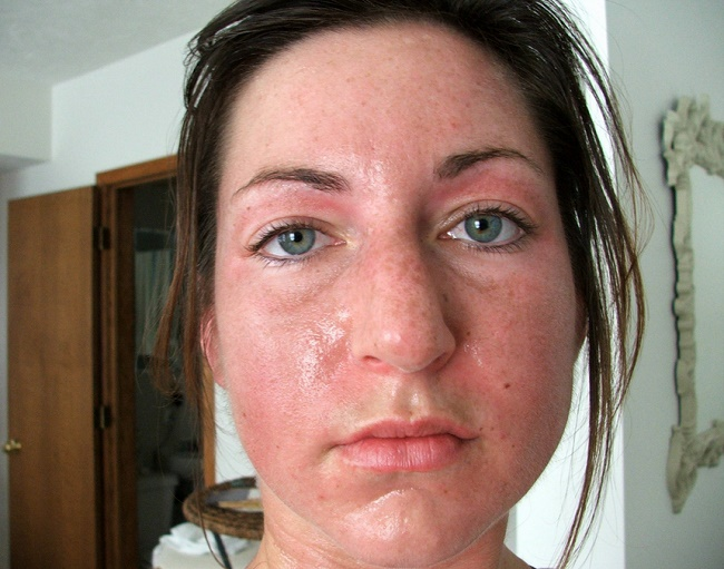 What S Wrong With My Face Tips For Treating Common Teen